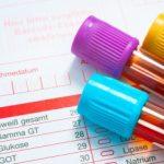 diagnostyka-laboratoryjna